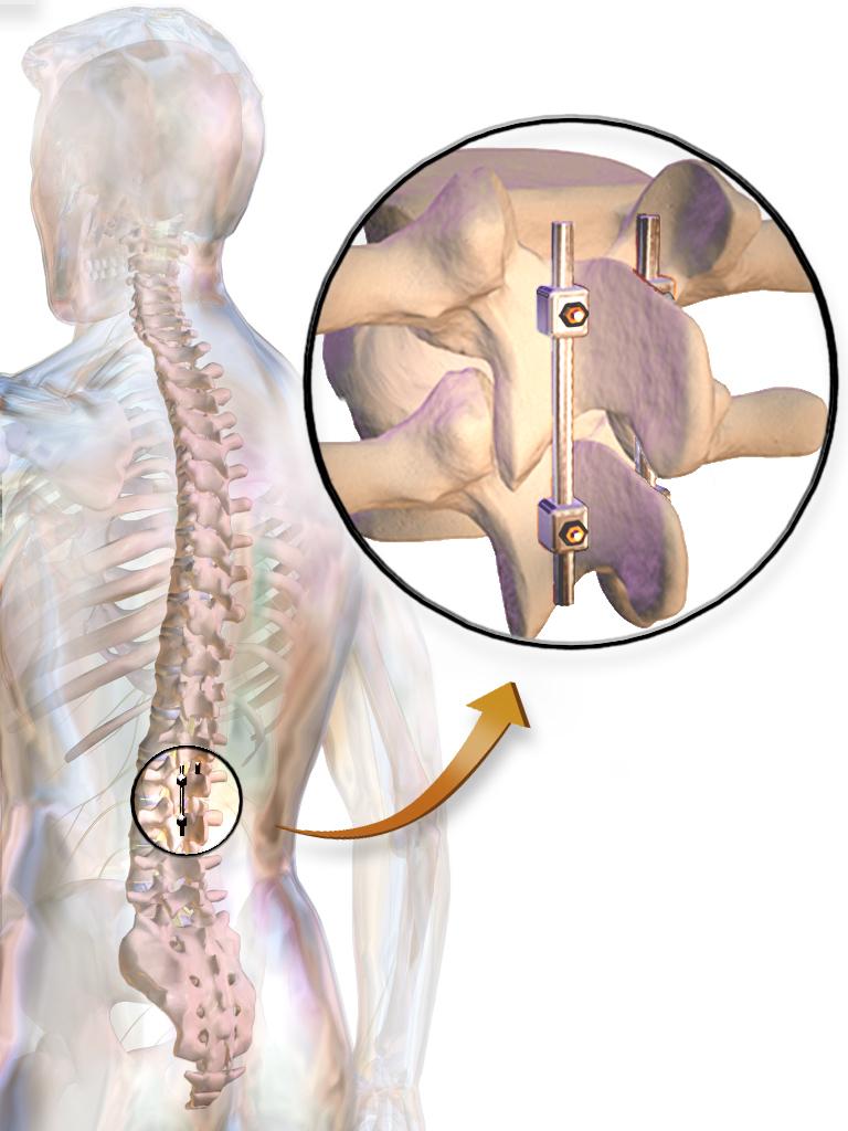 درمان دیسک کمر با بیمه پایه